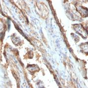 FFPE human placenta sections stained with 100 ul anti-Galectin-13 (clone PP13/1161) at 1:400. HIER epitope retrieval prior to staining was performed in 10mM Citrate, pH 6.0 or 10mM Tris 1mM EDTA, pH 9.0.